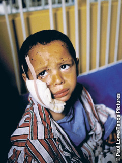 A little boy in a hospital bed with his face bandaged