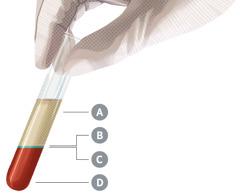 Un tubo de ensayo con sangre. Lasangre está dividida en sus cuatro componentes principales, que están identificados con las letras A, B, C y D.